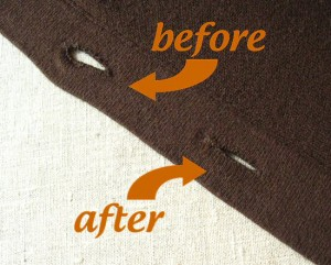 cardigan button holes, before and after surgery
